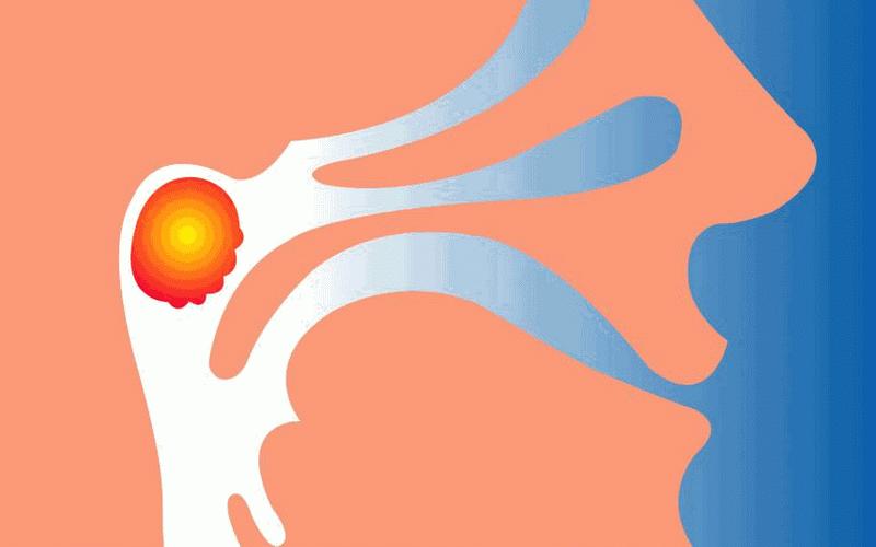 Как правильно лечить аденоиды?