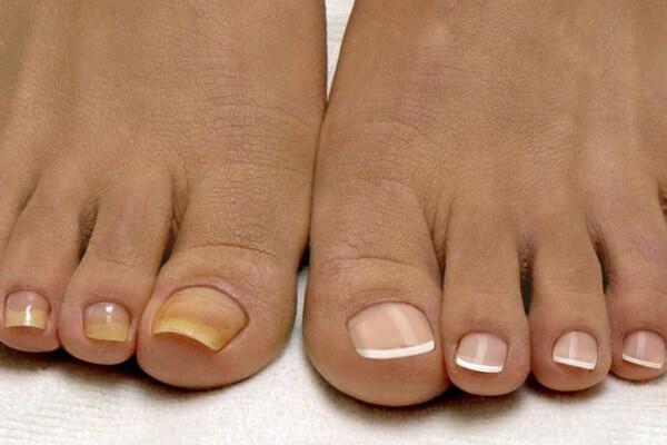 Как правильно лечить грибок ногтей